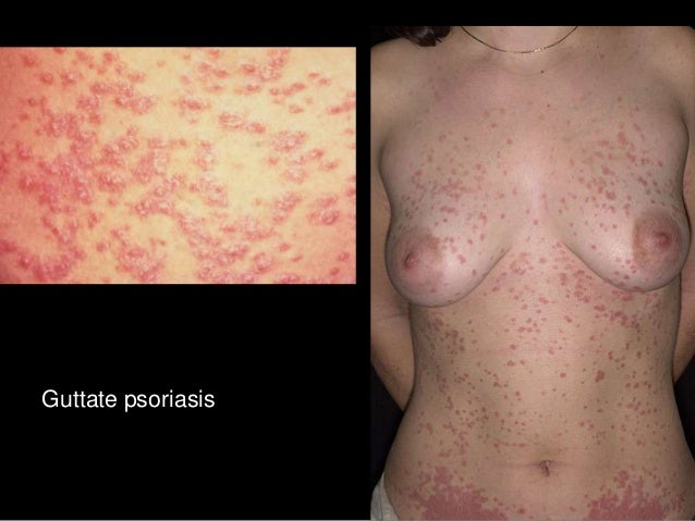 psoriasis in 3 jahren and omega cura.jpg