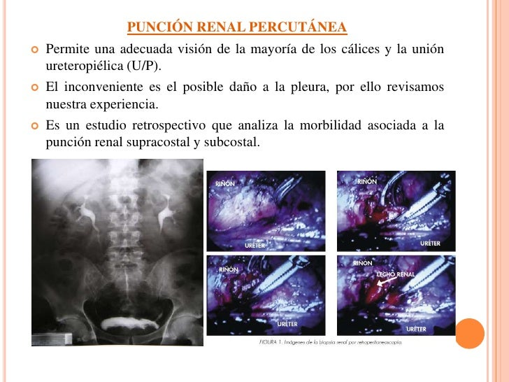PUNCIÓN RENAL PERCUTÁNEA     Permite una adecuada visión de la mayoría de los cálices y la unión      ureteropiélica (U/P...