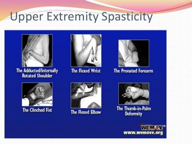 spasticity, Skeleton