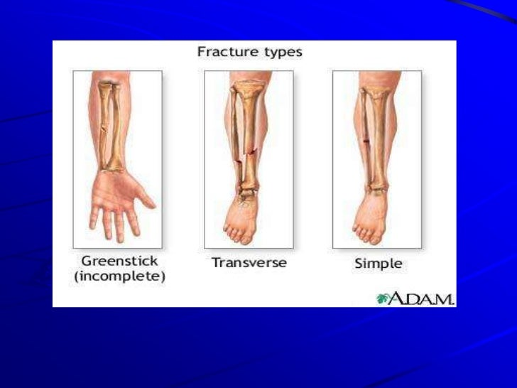 Fractures 0f Lower Limb