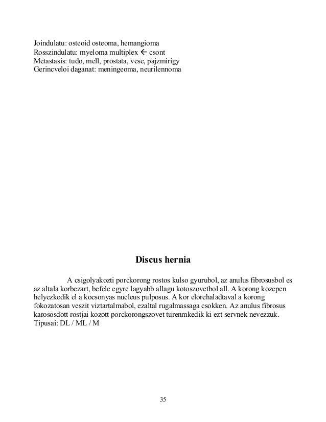 Joindulatu: osteoid osteoma, hemangiomaRosszindulatu: myeloma multiplex  csontMetastasis: tudo, mell, prostata, vese, paj...