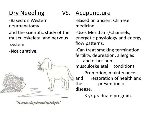 what is dry needling What is trigger point dry needling (tdn) tdn is the use of solid filament needles inserted through the skin and into the muscle to release painful myofascial trigger points.