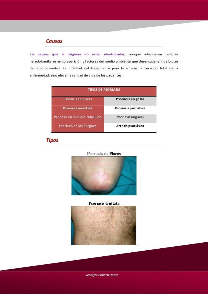 El impacto de la psoriasis a la esterilidad