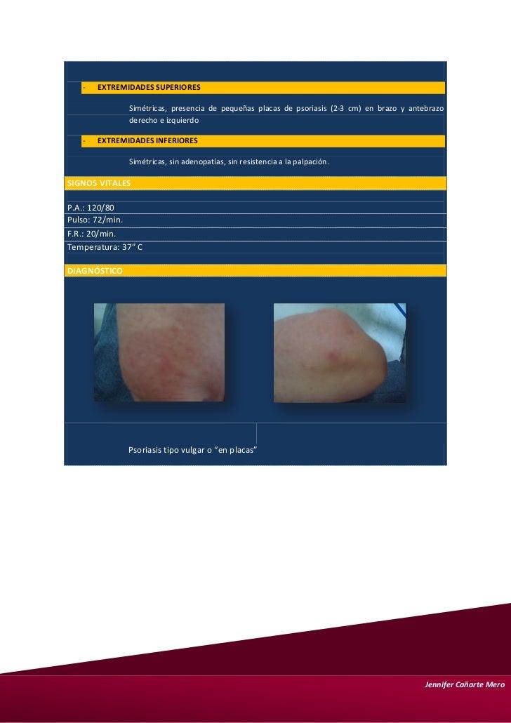 El enlace de la psoriasis con la artritis