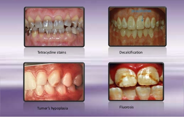 Discoloration Of Teeth And Management