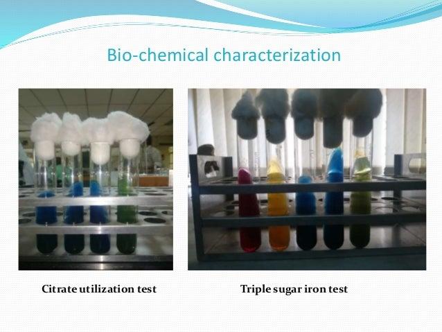 Bio-chemical characterization Citrate utilization test Triple sugar iron test