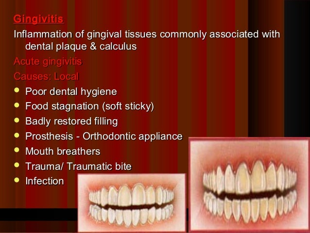 GingivitisInflammation of gingival tissues commonly associated with   dental plaque & calculusAcute gingivitisCauses: Loca...