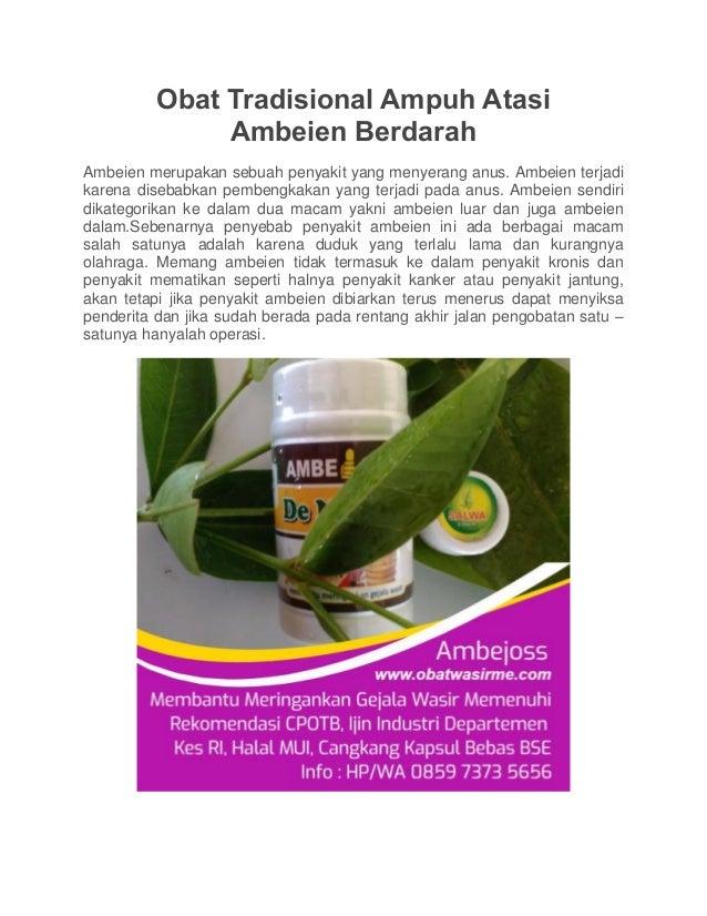 Obat Tradisional Ampuh Atasi Ambeien Berdarah Ambeien merupakan sebuah penyakit yang menyerang anus. Ambeien terjadi karen...