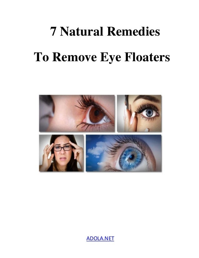 Natural Home Remedies For Eye Floaters