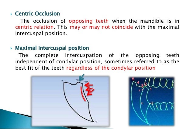 transverse horizontal axis 4 centric