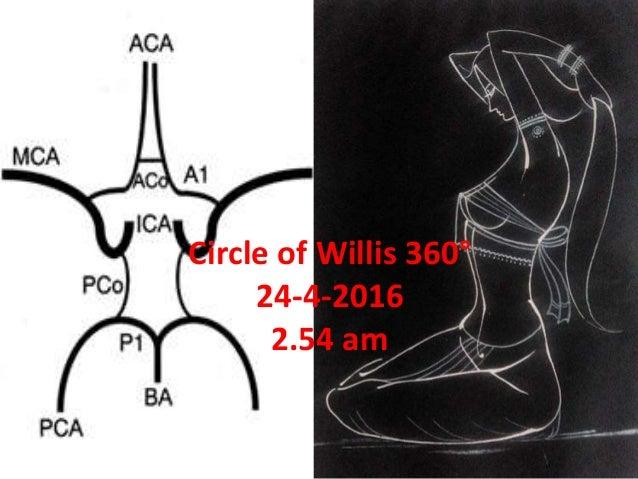 Circle of Willis 360° 24-4-2016 2.54 am