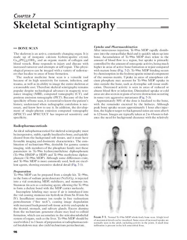 Chapter 7  Skeletal Scintigraphy  98  BONE SCAN  The skeleton is an active, constantly changing organ. It is  made up of i...