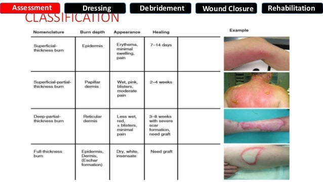 reflection on experience with surgical wound care Let us write or edit the essay on your topic critical reflection on the effective care management of a patient with chest drain following a stabbed wound at the right side with a personal 20% discount.