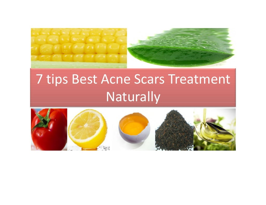 7 tips natural treatment of home remedies acne scars