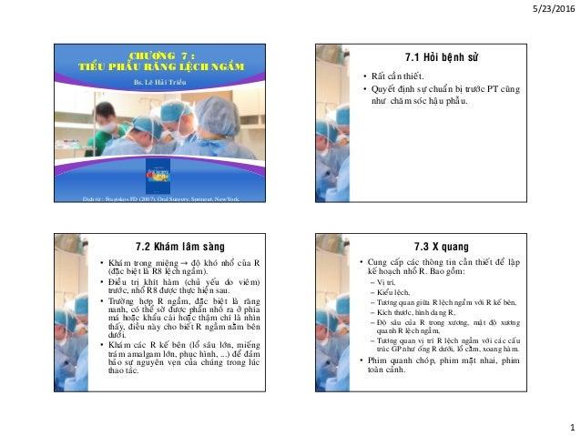 5/23/2016 1 CHÖÔNG 7 : TIEÅU PHAÃU RAÊNG LEÄCH NGAÀM Bs. Leâ Haûi Trieàu Dòch töø : Fragiskos FD (2007), Oral Surgery, Spr...