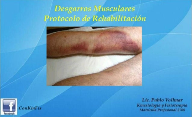 Rehabilitación de Desgarros Musculares