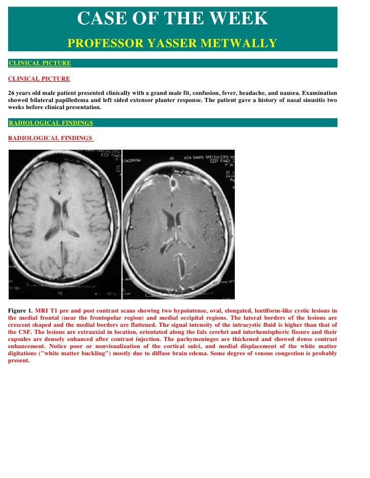 CASE OF THE WEEK                      PROFESSOR YASSER METWALLY CLINICAL PICTURE  CLINICAL PICTURE  26 years old male pati...
