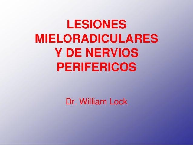 LESIONES MIELORADICULARES Y DE NERVIOS PERIFERICOS Dr. William Lock