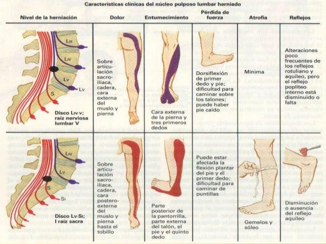 Los dolores agudos en los riñones del pie se paralizan