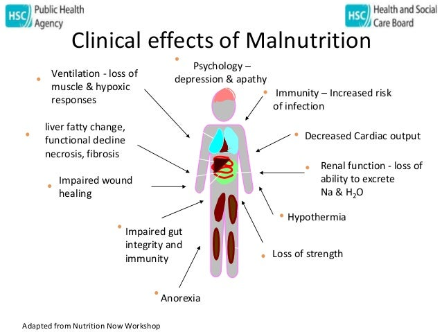 Malnutrition - The Public Health Issue Overshadowed by Obesity - Joan…