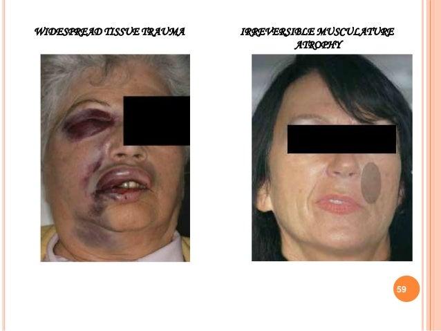 IRREVERSIBLE MUSCULATURE ATROPHY WIDESPREAD TISSUE TRAUMA 59