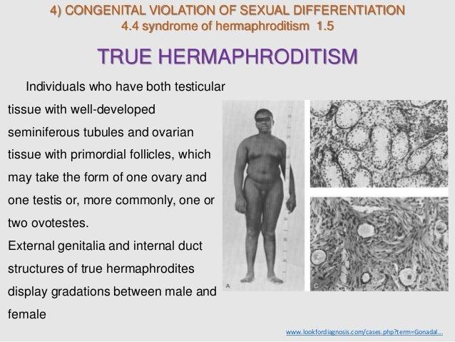 What causes hermaphrodites