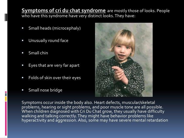 8 9 a, megan itzkowitz, cri du chat syndrome
