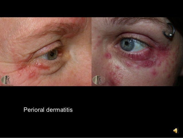 8  acne and rosacea