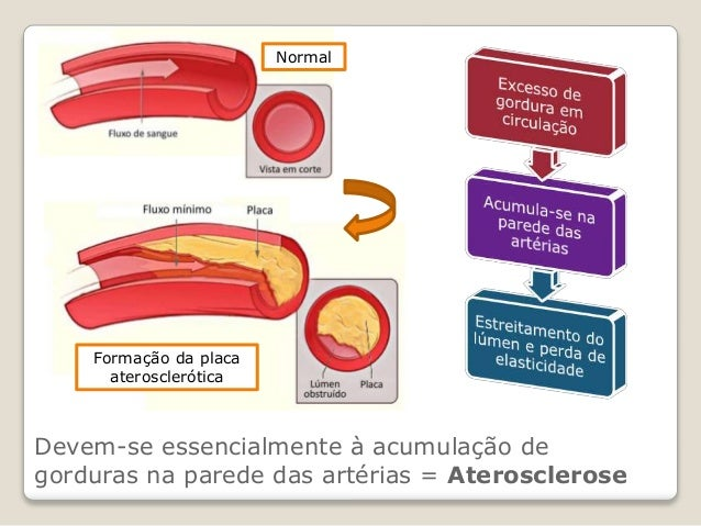 CN9-doenças cardiovasculares Slide 3