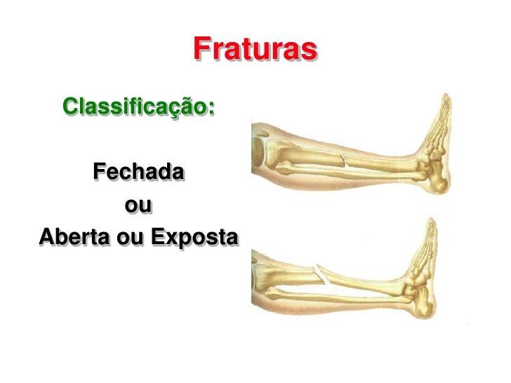 Fraturas  Classificação:    Fechada        ouAberta ou Exposta