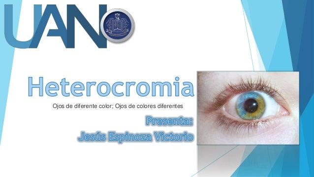 Ojos de diferente color; Ojos de colores diferentes
