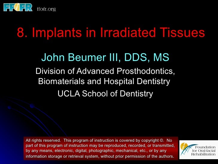 8. Implants in Irradiated Tissues         John Beumer III, DDS, MS      Division of Advanced Prosthodontics,      Biomater...