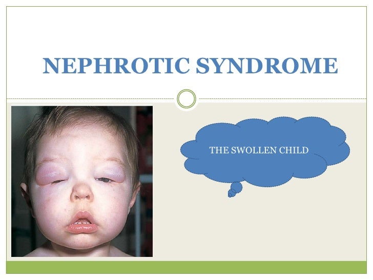 NEPHROTIC SYNDROME THE SWOLLEN CHILD