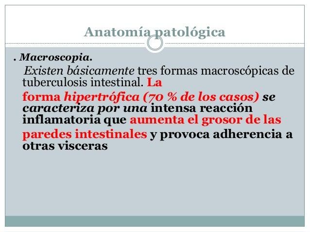 8. tuberculosis intestinal