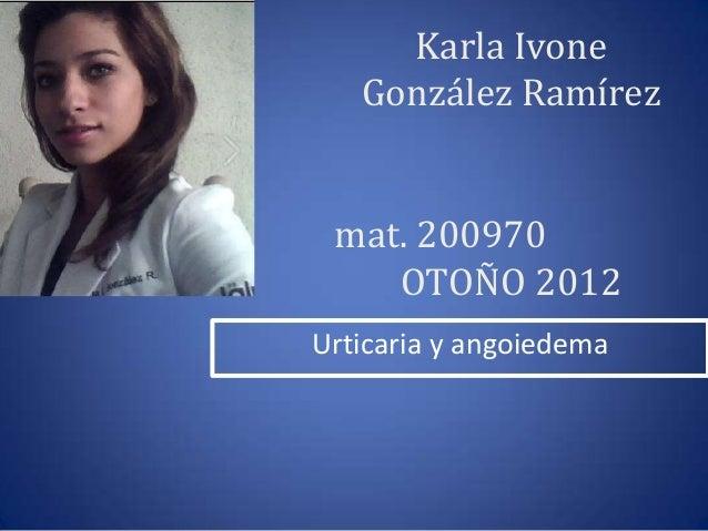 Karla Ivone   González Ramírez mat. 200970    OTOÑO 2012Urticaria y angoiedema