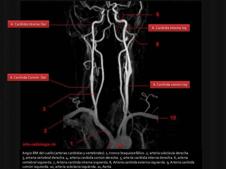 8. vascularización del encéfalo