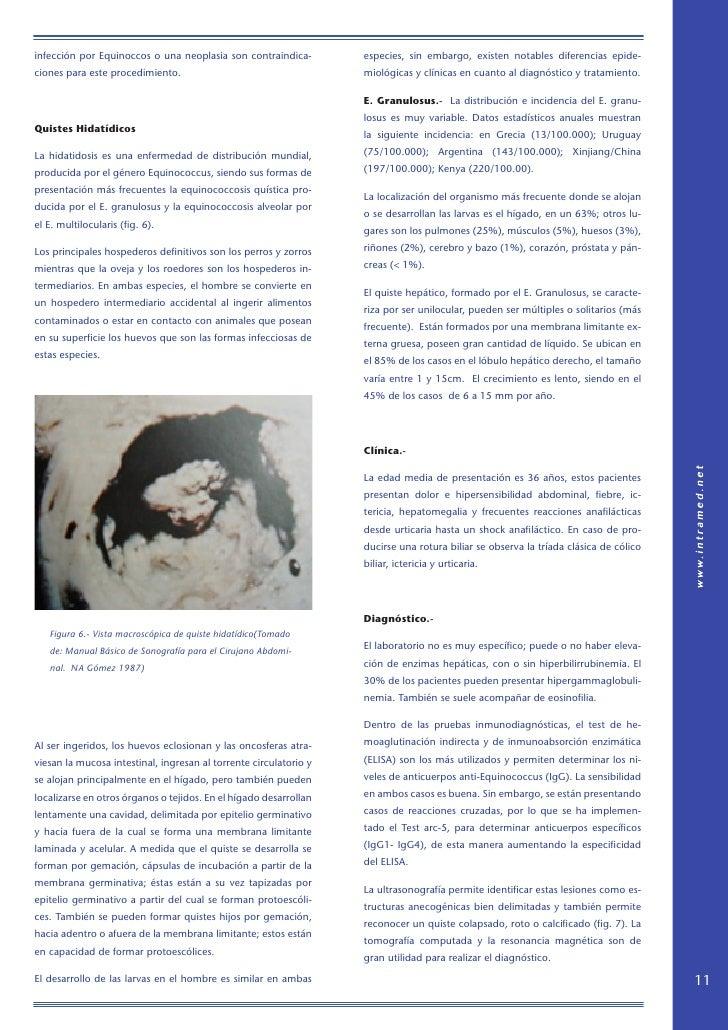 infección por Equinoccos o una neoplasia son contraindica-         especies, sin embargo, existen notables diferencias epi...