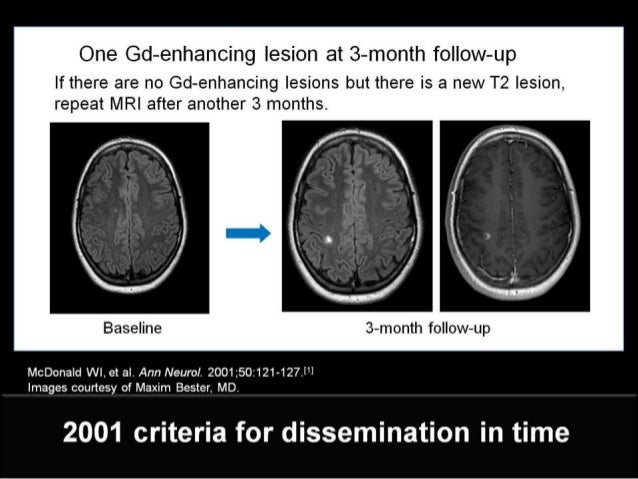 clinically isolated syndrome and ms Clinically isolated syndrome suggestive of multiple sclerosis: dynamic patterns  of gray and white matter changes—a 2-year mr imaging.