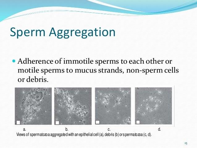 abstinence Sperm analysis