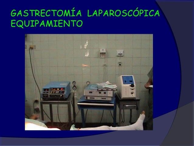 GASTRECTOMÍA LAPAROSCÓPICAEQUIPAMIENTO - LIGASURE