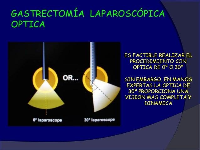 GASTRECTOMÍA LAPAROSCÓPICATROCARES                 EL PRIMER TROCAR (A) SE INSERTA                     EN EL OMBLIGO. LOS...