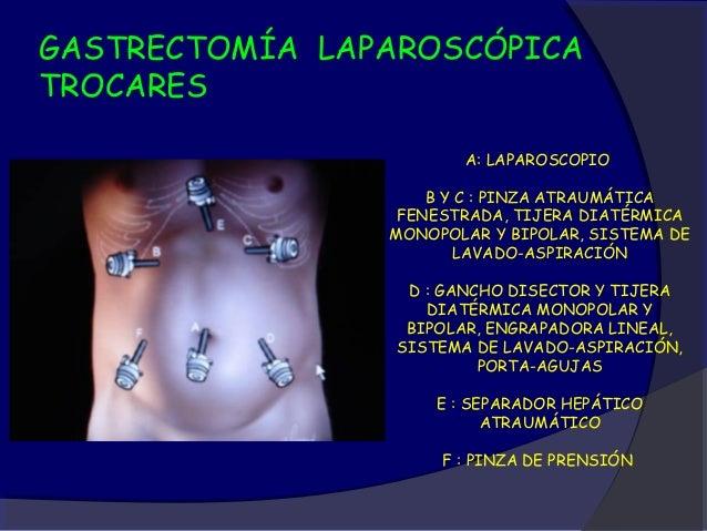 GASTRECTOMÍA LAPAROSCÓPICAMOVILIZACION - SECCION VASCULAR                           LOS VASOS SE                          ...