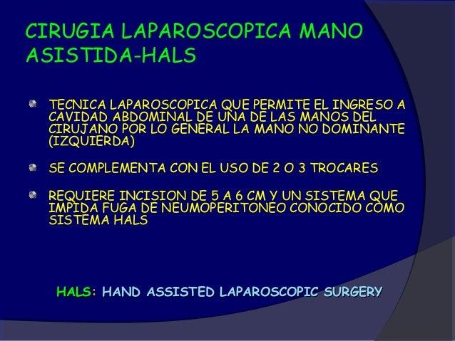Gastrectomía laparoscópica - CICAT-SALUD