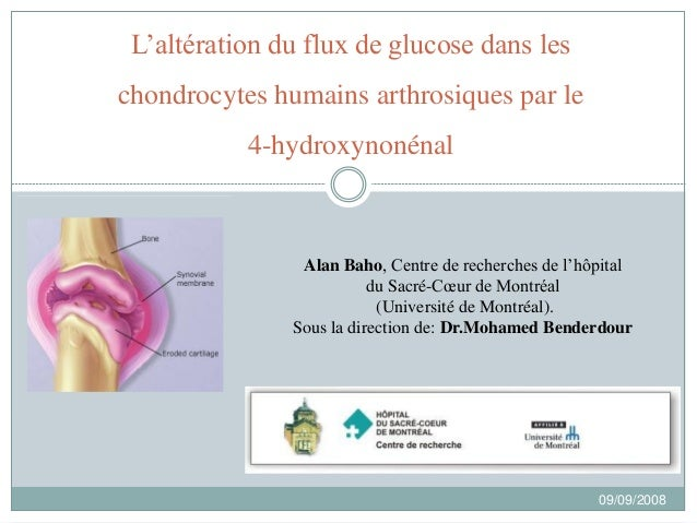 L'altération du flux de glucose dans les chondrocytes humains arthrosiques par le 4-hydroxynonénal Alan Baho, Centre de re...