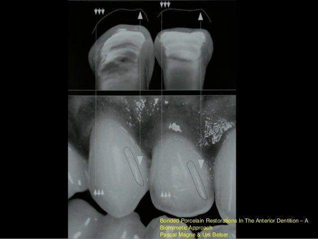 完成~偷懶之作…⽛牙齦還不⼩小⼼心卡到XD