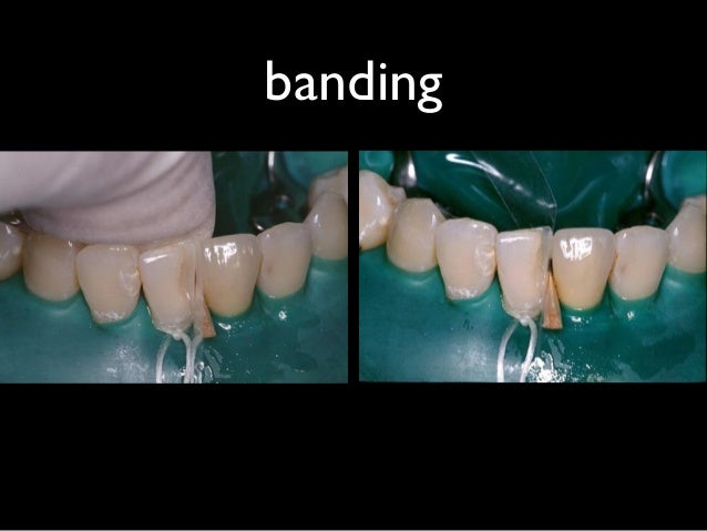 前牙複合樹脂 85分之卷
