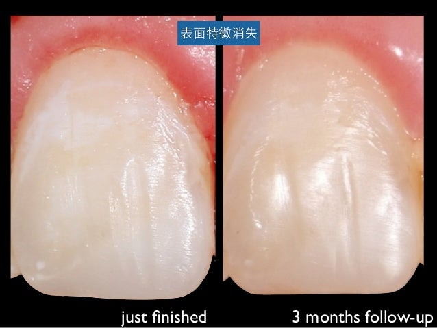just finished 3 months follow-up 表⾯面特徵消失