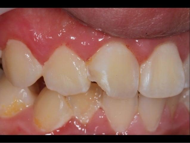 Bonded Porcelain Restorations In The Anterior Dentition – A Biomimetic Approach Pascal Magne & Urs Belser