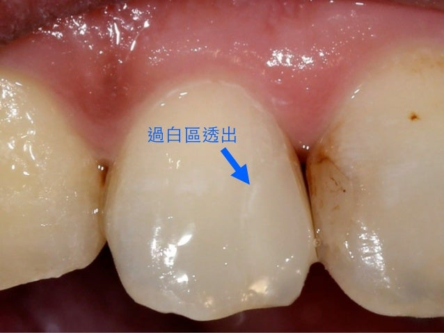 "⿈黃⾦金⽐比例也不是拿來計算⽛牙⿒齒 ""真正""的寬度的 Bonded Porcelain Restorations In The Anterior Dentition – A Biomimetic Approach Pascal Magne &..."