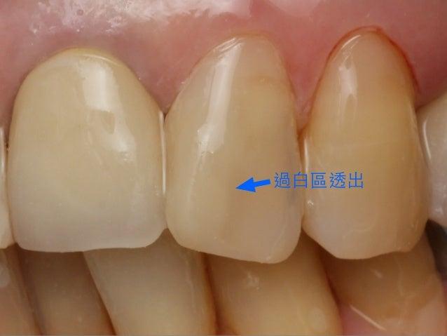 除了⽐比例,要有線⾓角 及不同⽛牙形的觀念 Bonded Porcelain Restorations In The Anterior Dentition – A Biomimetic Approach Pascal Magne & Urs B...